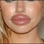 Collagen lips almost as thick as Ziggo support staff