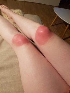 burnt knees